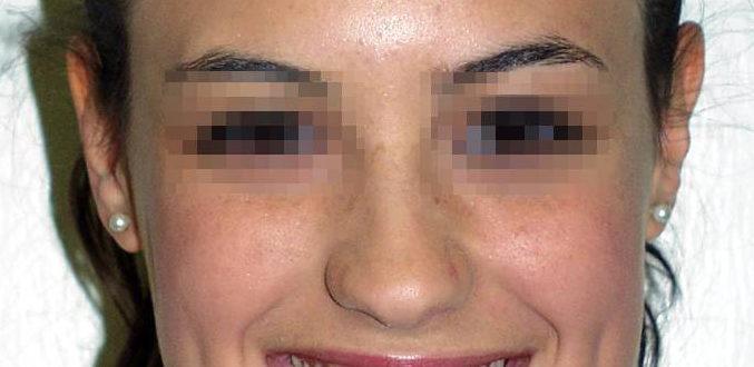 Soluzione di un caso ortodontico – 1