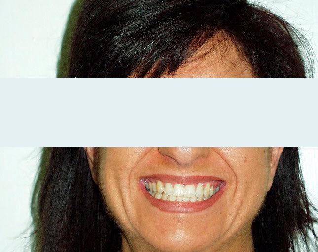 Caso ortodontico del 1984