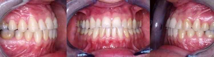 https://www.centromedicodiblasio.it/wp-content/uploads/2016/12/c2-denti-a-22-anni-750x200.jpg