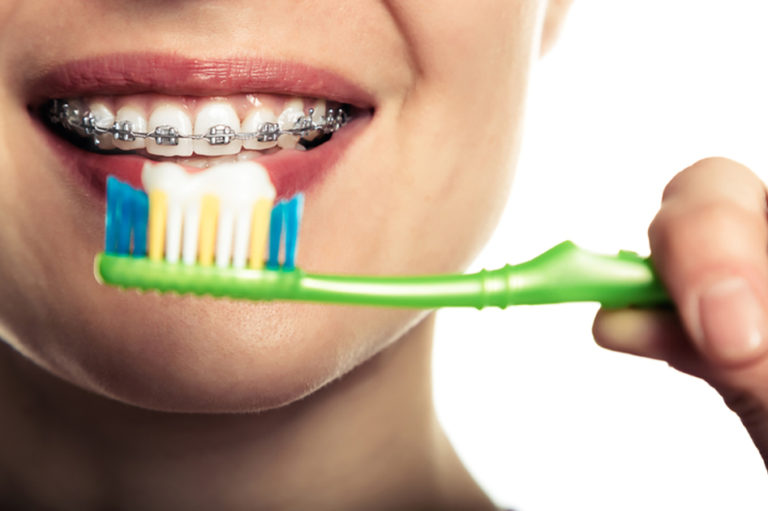 Igiene orale ed ortodonzia