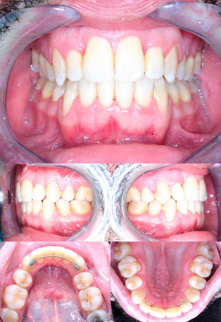 affollamento dentario adulto dopo